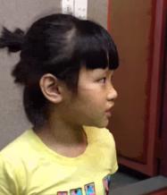 Bé Bảo Lâm - cấy ốc tai Cochlear lúc tròn 3 tuổi.