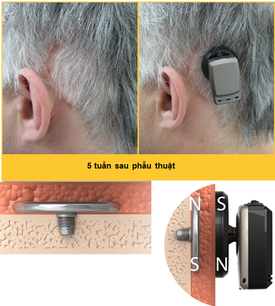 Máy trợ thính nghe qua đường xương