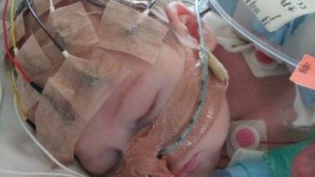 Em bé nhỏ tuổi nhất ở Anh được cấy điện cực ốc tai