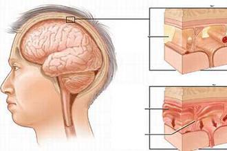 Bất thường thính lực ở trẻ viêm màng não mủ được giảm rất ít khi dùng DEXAMETHASONE hoặc GLYCEROL